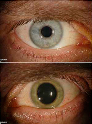 Ebola eye image normal vs vasculitis